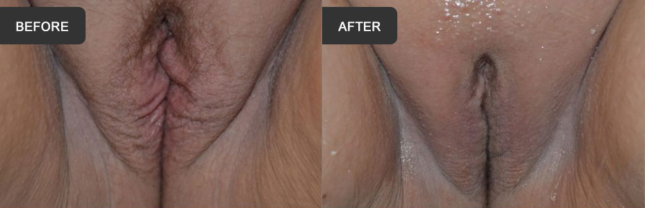 vaginal plasty before and after